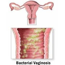 Bacterial Vaginosis - The Causes of the Uncomfortable Smell