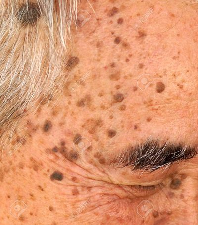 Homeopathic Remedies to Treat Seborrheic Keratosis and Acne