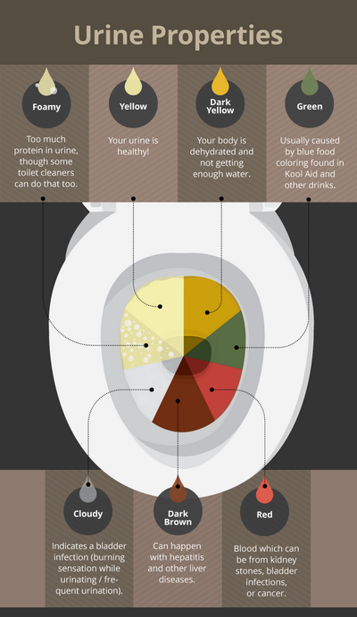 How Do You Know Your Urine Color?