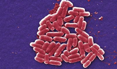 How to Recognize Symptoms of Shigella Infection