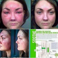 Self-Help Techniques For Getting Rid of Melasma