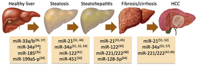 What Are the Common Symptoms of FPL and Non-alcoholic Fatty Liver Disease?
