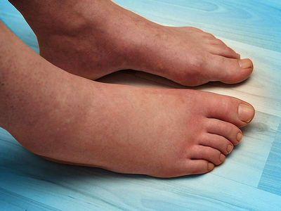 What Causes Sudden Swollen Feet?