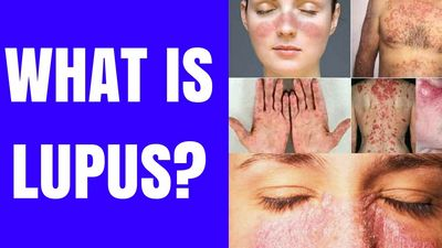 What Is Lupus Symptoms and Signs?