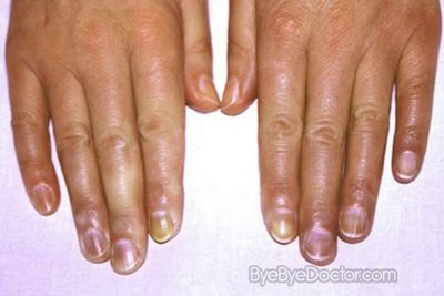 What Is the Best Treatment For Cyanosis?